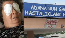 Adana'da şizofreni hastası bir kadın, bir hastanın gözlerini çıkardı