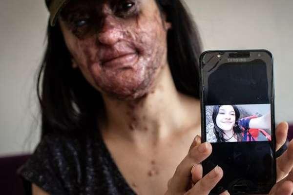 İnfaz yasası değil 'özel af'! Berfin'in yüzünü tanınmaz hale getiren saldırgan da dışarda olacak!