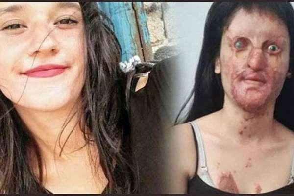 Yüzü asitle yakılan Berfin Özek, saldırgan eski sevgiliyi 'seviyorum' diyerek affetti! Özek, avukatlarını da azletti!